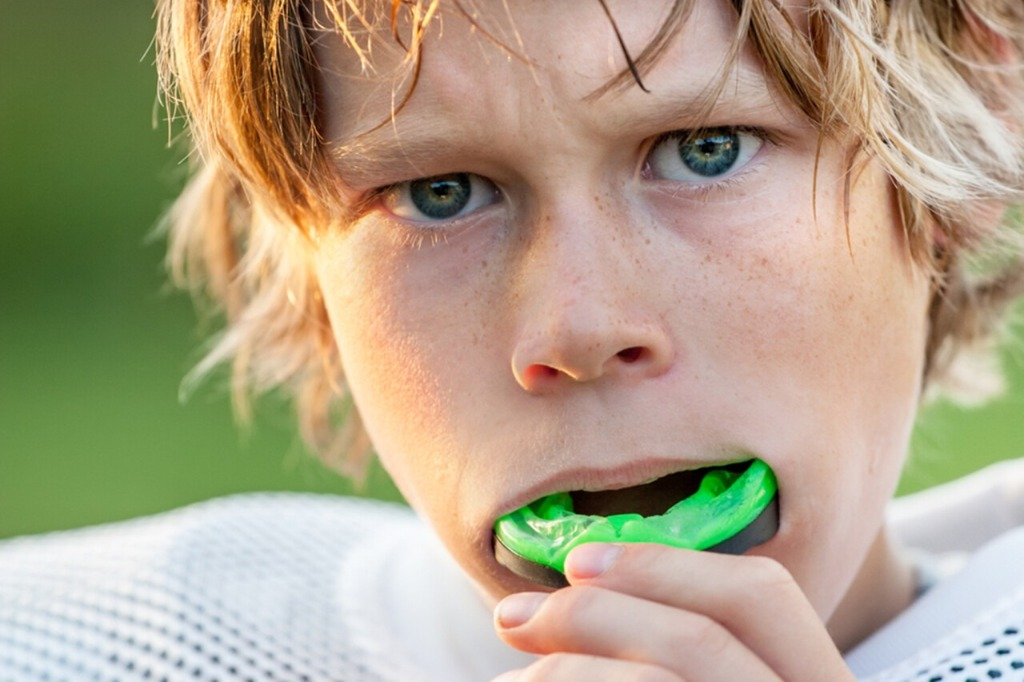 importance-of-wearing-mouthguards-during-sports