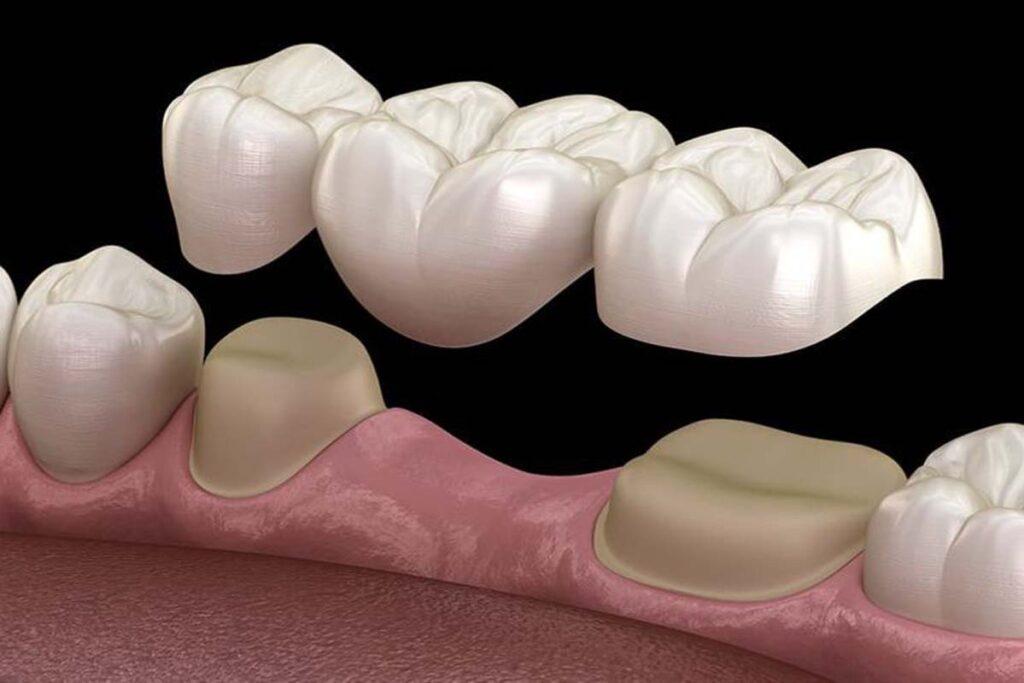 dental bridges in sw calgary