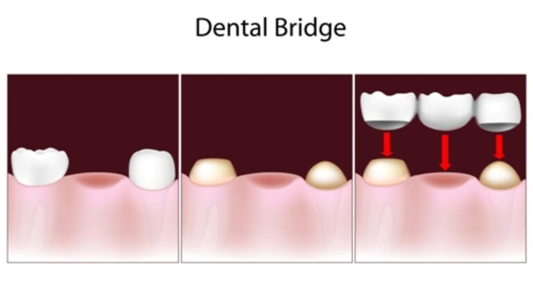 why-you-should-opt-for-dental-bridges